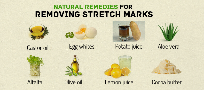 How to Get Rid of Stretch Marks Fast - Home Remedy