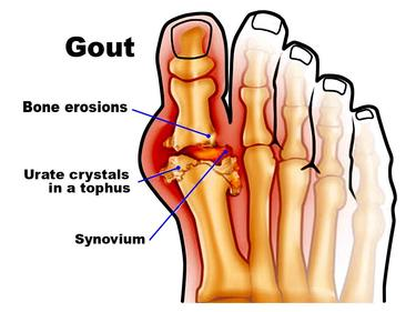Major Causes of Gout, Symptoms and Treatment