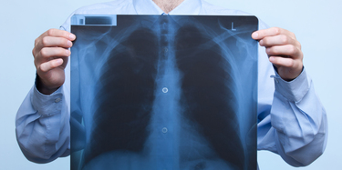 Common Causes Of Lung Cancer