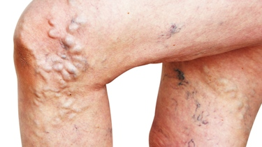 What Causes Varicose Veins, Symptoms and Treatment?